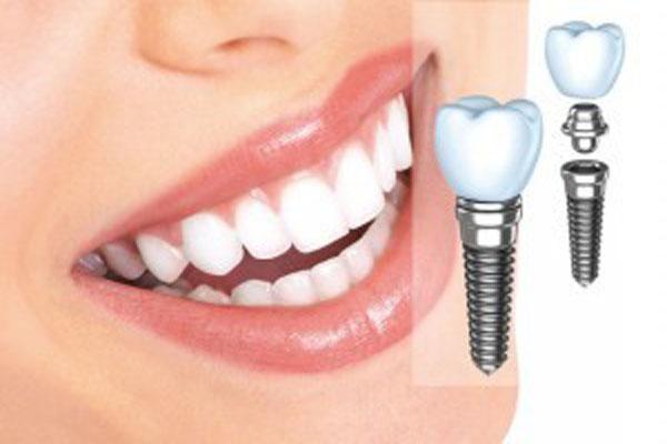 Diş sorunu olanlar dikkat, sahte implant taktırmayın