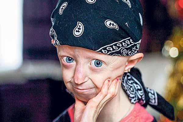 Bedeni 100 yaşında olan Hayley Okines 17 yaşında hayatını kaybetti