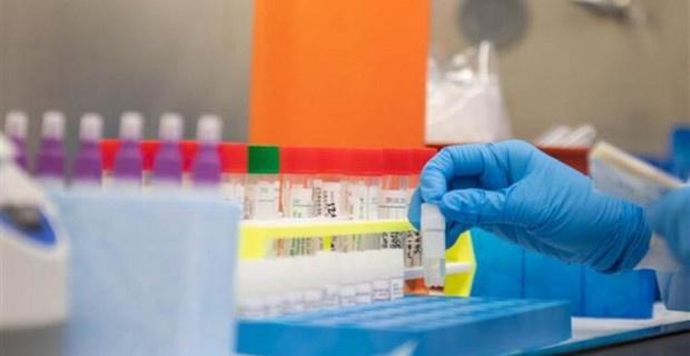 KKTC'de koronavirüsten 2. ölüm