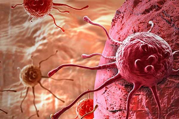 Bilim adamları geliştirdi kanserli hücreler hemen teşhis edilecek