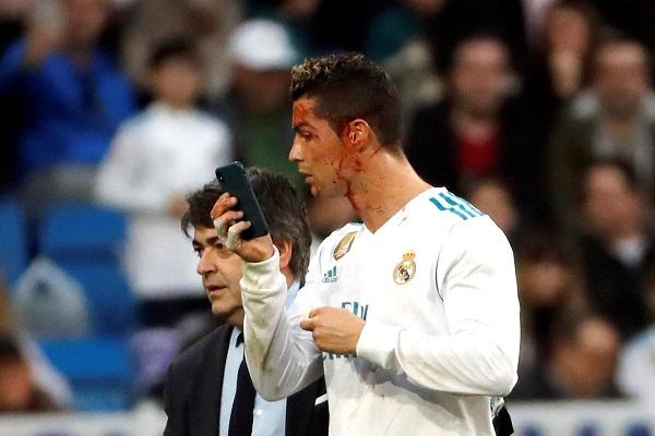 Yıldız futbolcu Ronaldo bir anda kanlar içinde kaldı